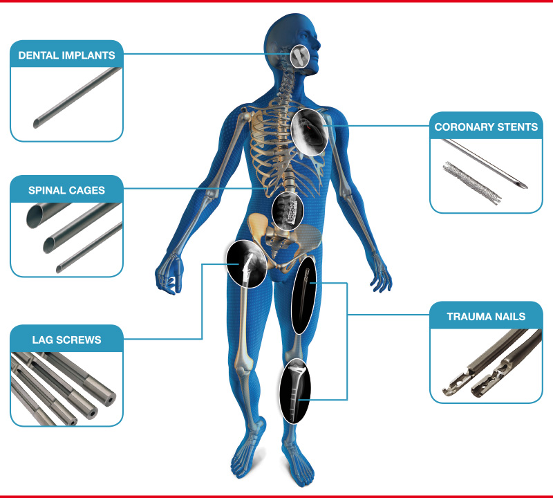 Fine Tubes medical grade tubing are used in dental implants, trauma nails, lag screws, spinal cages and stents